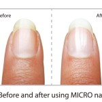 MicroNail Before and After